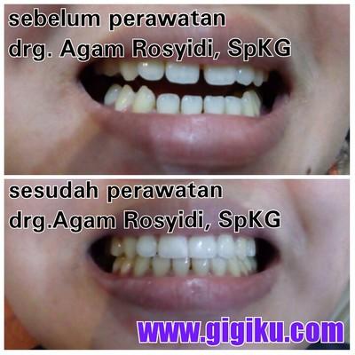 Hasil Perawatan drg. Agam Rosyidi, SpKG dokter gigi sidoarjo