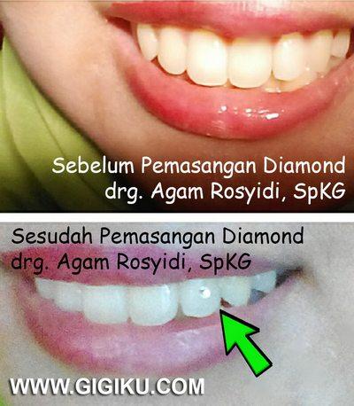 Hasil Perawatan drg. Agam Rosyidi, SpKG dokter gigi delta sari