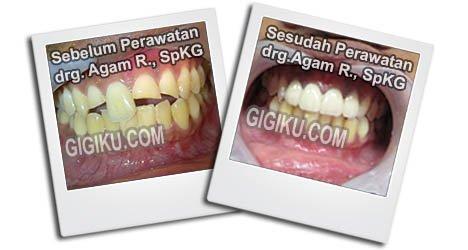 Hasil Perawatan drg. Agam Rosyidi, SpKG