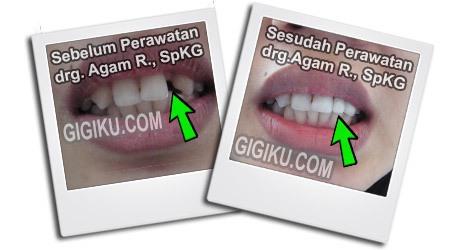 Hasil Perawatan drg. Agam Rosyidi, SpKG dokter gigi tropodo