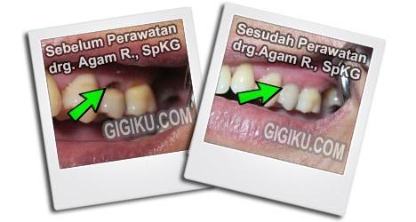 Hasil Perawatan drg. Agam Rosyidi, SpKG dokter gigi sedati