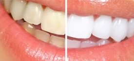Internal Bleaching on Root Canal Anomaly
